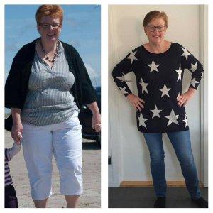 før og efter vægttab 43 kilo